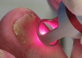 Лазерное выжигание