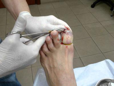 Удаление ногтя на ноге хирургическим способом
