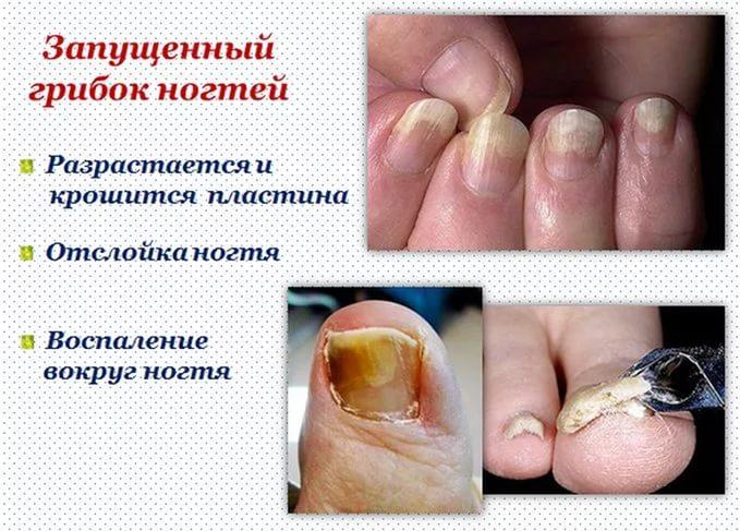 Запущенный грибок ногтя