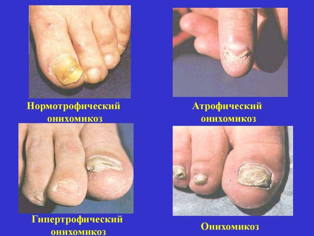 Этапы развития онихомикоза