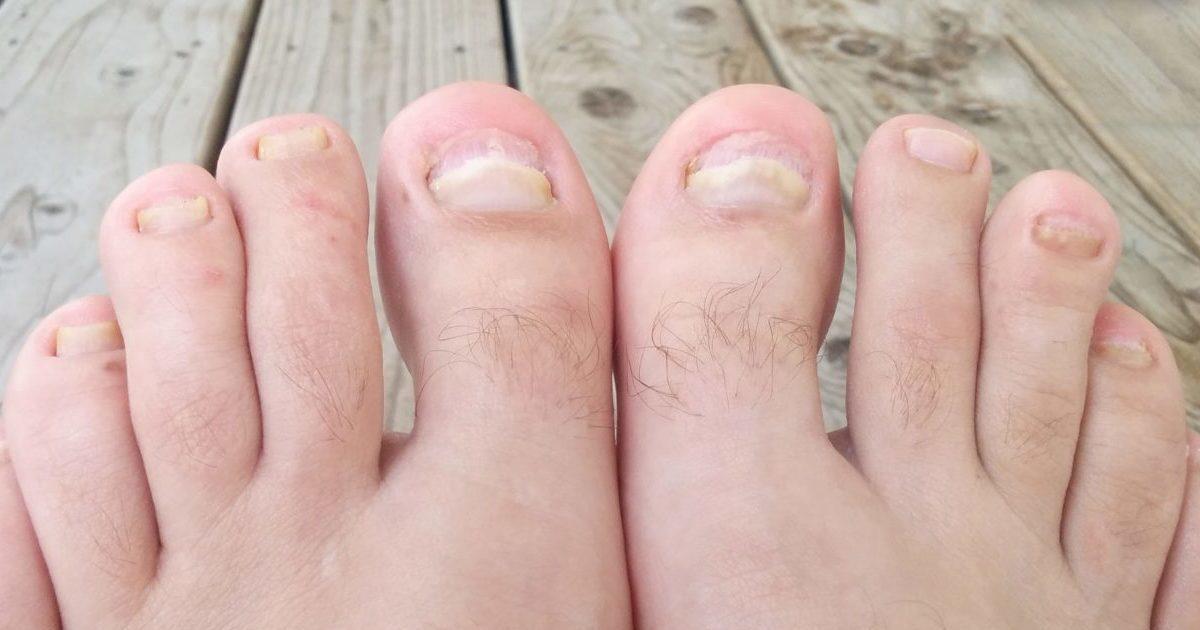 Восстановление ногтевой пластины