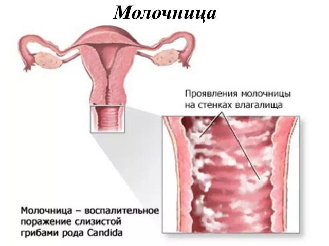 Проявления кандидоза у женщин