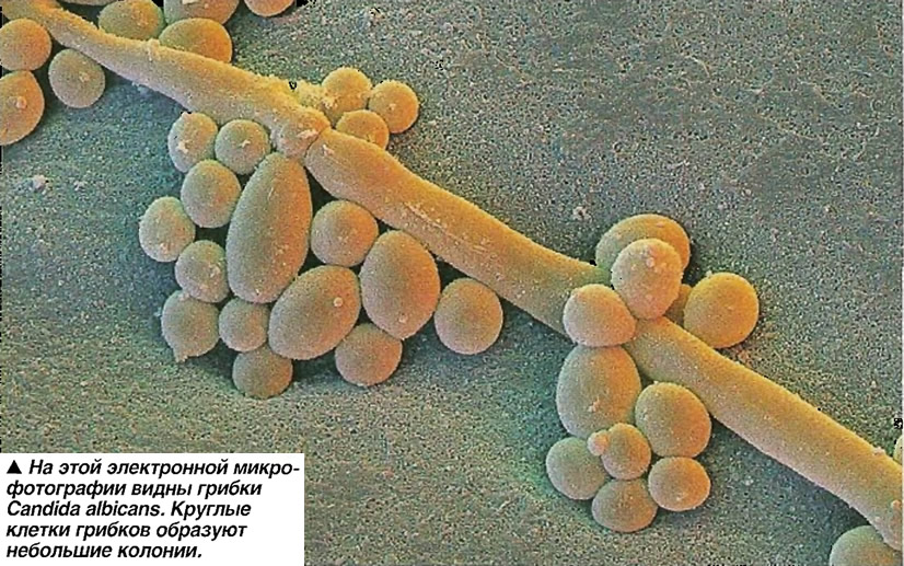 Грибки Candida albicans