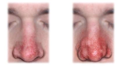 Демодекоз носа