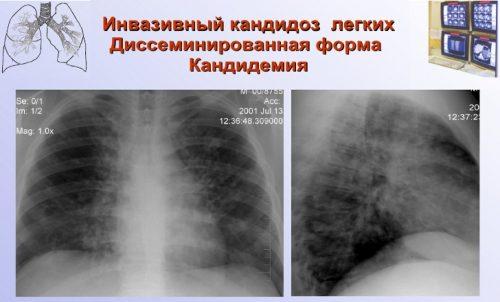 Кандидоз легких на рентгене