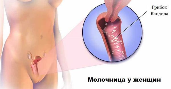 Симптоматика заражения молочницей