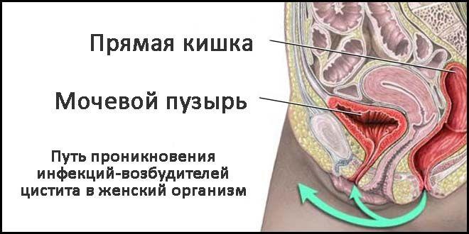 Проникновение грибка в организм женщины