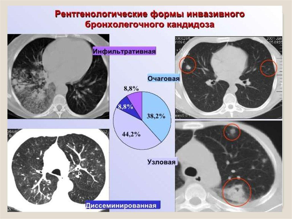 Рентгенологические формы кандидоза