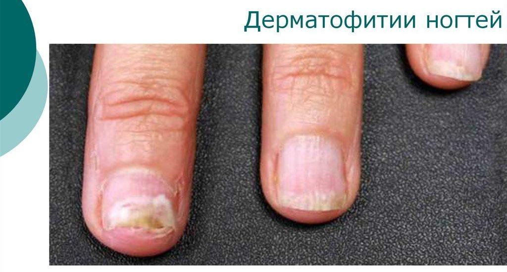 Грибковое поражение ногтевой пластины