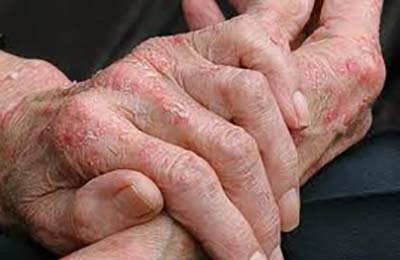 Пораженные участки кожи