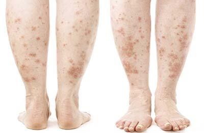Пример поражения кожи