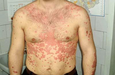Пример распространения заболевания