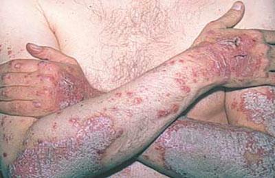 Поражение кожи в области рук