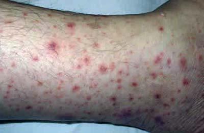 Кожный сифилис