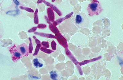 Trichosporon beigelii
