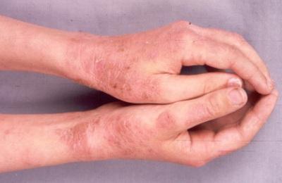 Лишай у человека фото признаки и лечение: розовый лишай и другие
