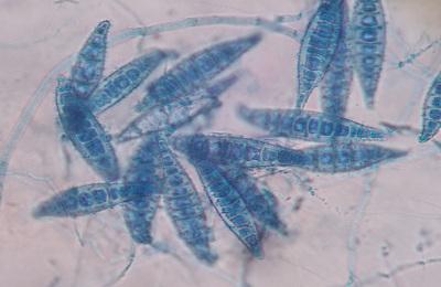 Microsporum