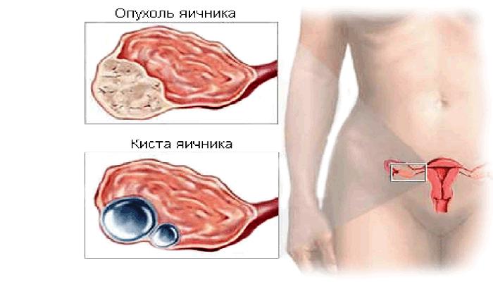 Новообразования яичников у женщин