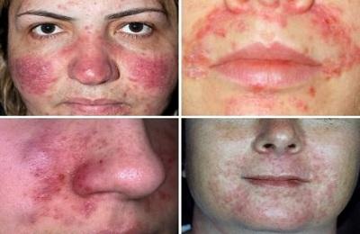 allergicheskij-dermatit-na-lice_1_1