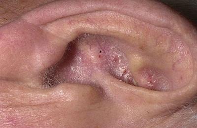 Себорейный дерматит за ушами лечение