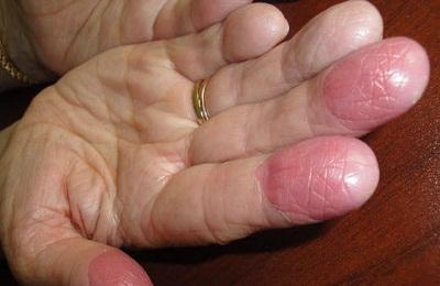 Болезнь пальцев
