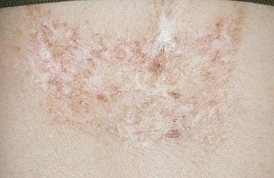 Поражение кожи
