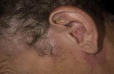 Повреждение ух