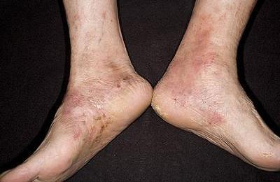 Поражение ног