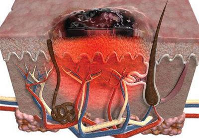 Перерождение бородавки в рак