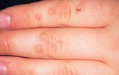 Плоские бородавки на пальцах
