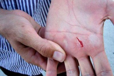 Повреждение ладони