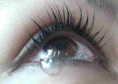 Слезливость глаз