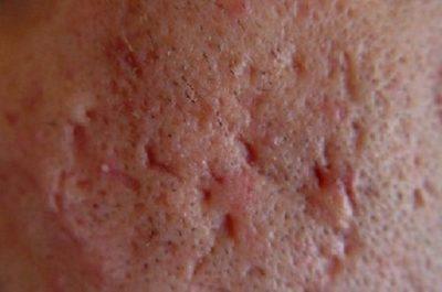 Рубцы после фурункула