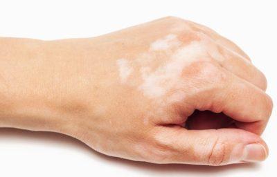 Белые участки кожи