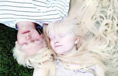 Виды альбинизма