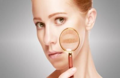 Нарушение пигментации кожи