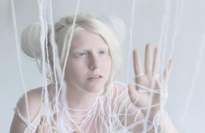 Лечение альбинизма