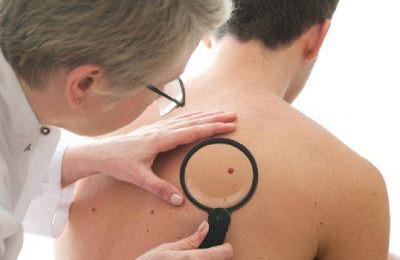 Новообразования на коже