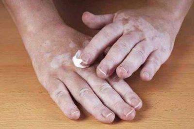 Наносить мазь на руку