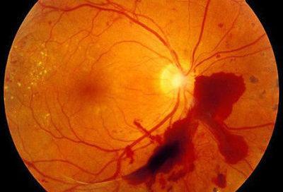 Тромбоз глазных вен