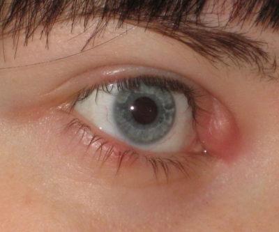 Фурункул на глазу