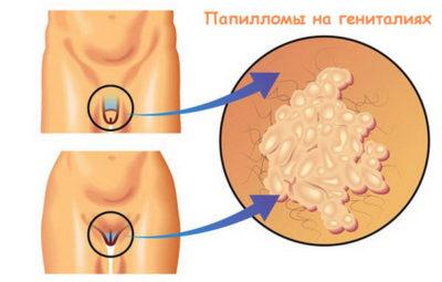 Кондиломы на гениталиях