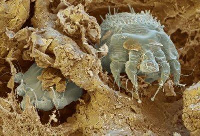 Сколько живет чесоточный клещ вне тела человека — Nasekomie