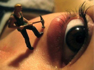 Ячмень на глазу как лечить быстро в домашних условиях