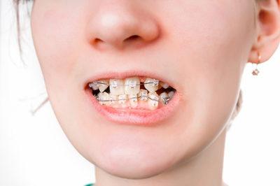 Папилломы на губах рта 46