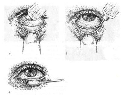 Закладывание мази в глаза