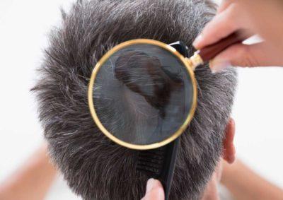 Обработка волос при педикулезе