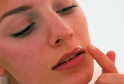 Лечение герпеса на губе