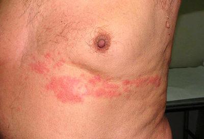 Герпес на груди легко лечится в домашних условиях
