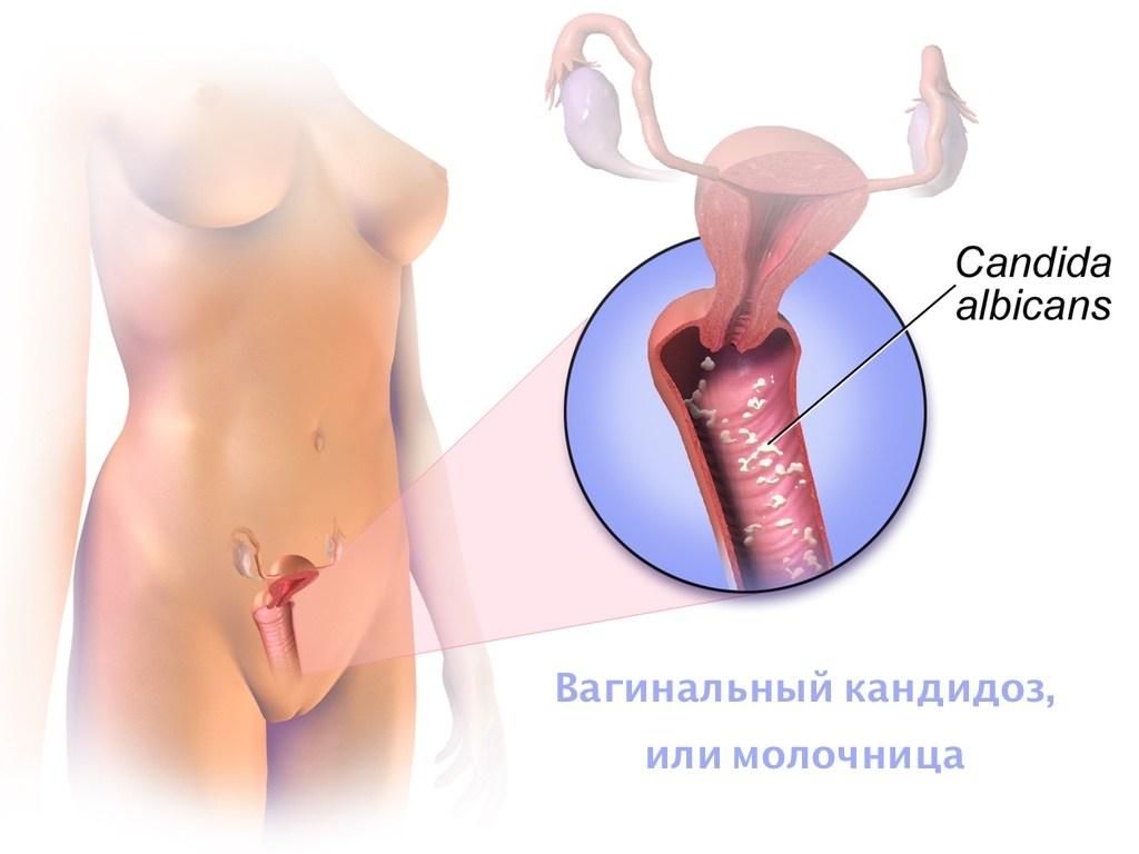 Проявления молочницы у женщин